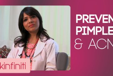 How To Prevent Acne & Pimples || Skincare || Skinfiniti With Dr.Jaishree Sharad
