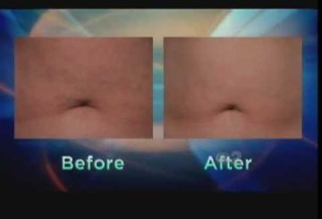 Firming Sagging Skin and Tummy Fat with Exilis