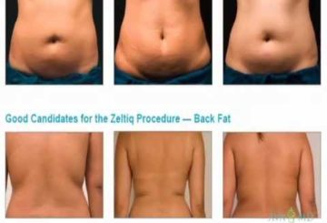 Freeze Fat Away With Coolsculpting by Zeltiq