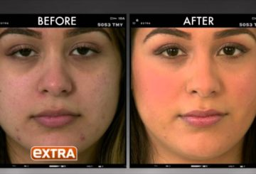 EXTRA: Reduce Acne Scars and Laugh Lines | (310) 879-1761