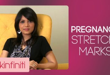 How To Get Rid Off Pregnancy Stretch Marks | Skincare | Skinfiniti With Dr.Jaishree Sharad