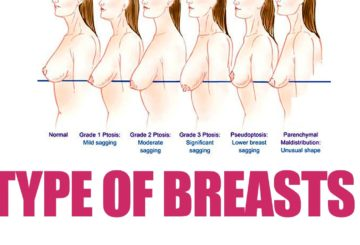 7 TYPES OF BREAST | Different Types of Breasts | WOMEN'S HEALTH | QUICK HEALTH