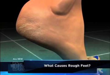 Women s Health from A – Z Rough Feet Medical Course